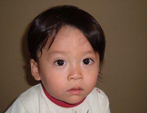 一歳の男の子改善後