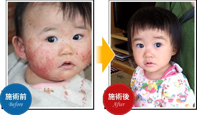 当院のリンパ整体は、子供のアトピーも改善可能です