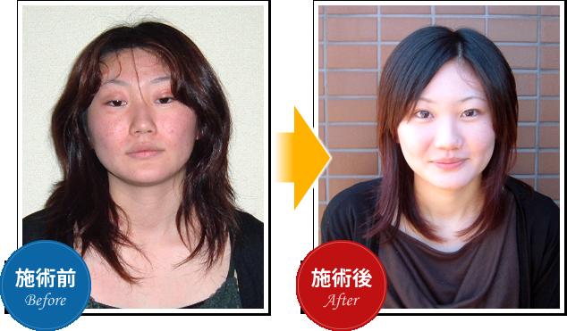 院長の星野トチローの施術でアトピー性皮膚炎が改善した女性